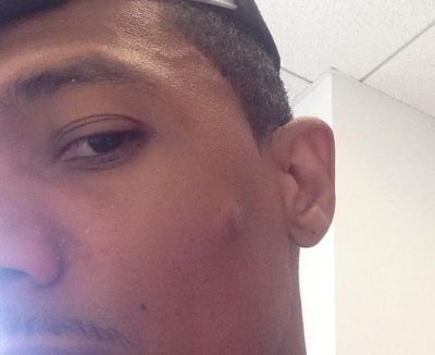 nick cannon's pimple