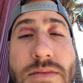 JJ posted a photo of his injuries, post-fight.